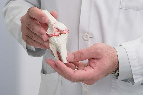 Dr Diezi Knie Arthrose-klein-nah